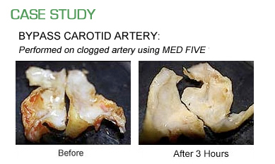 Med Five Case Study : Bypass Carotid Artery Performed on clogged artery using Med Five Full System